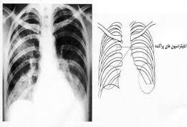 http://www.elib.hbi.ir/Persian/EMERGING_EBOOK/05_ATypical_pneumonia.htm